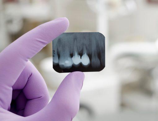 documentação ortodontica